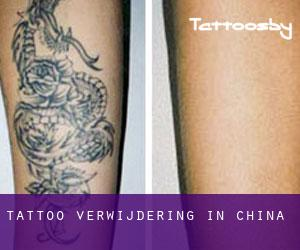 Tattoo verwijdering in China